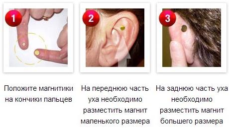 магниты ZeroSmoke как устанавливать на ухе